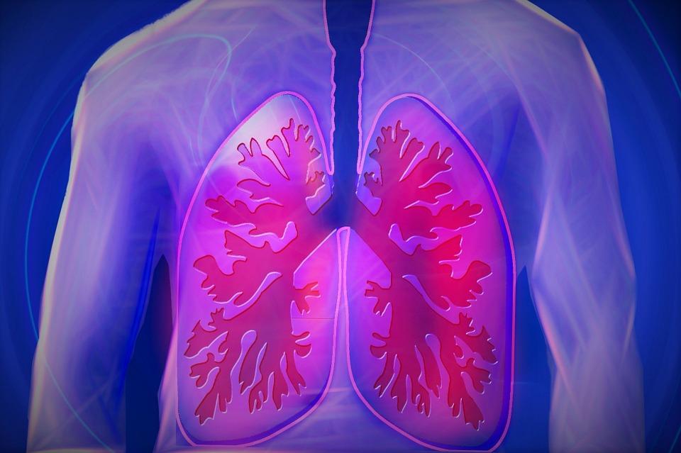 Incapacidad permanente Alveolitis Abogados Asturias