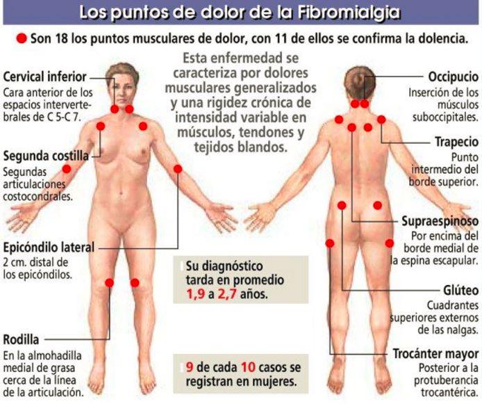 Gran Invalidez Fibromialgia Abogados Asturias